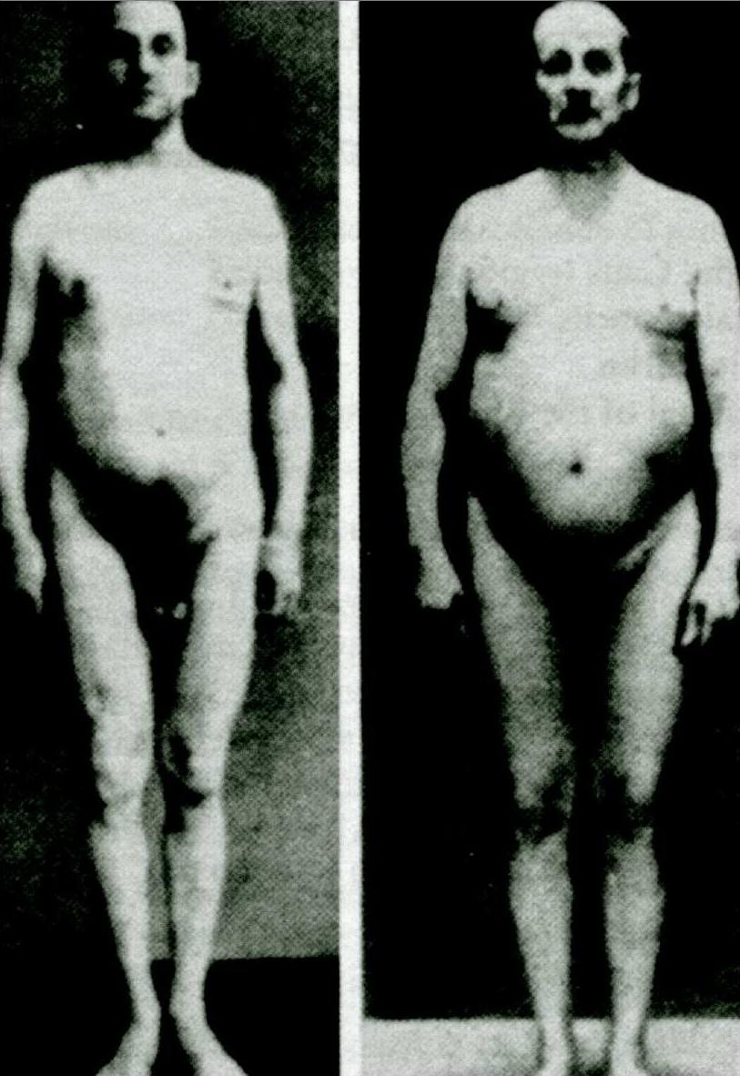 Prima e dopo la castrazione